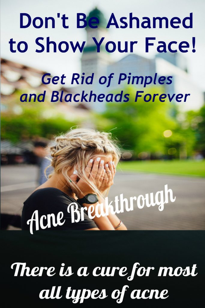 How To Get Rid Of Pimples Fast Quick Solution Self Care Tips For Women